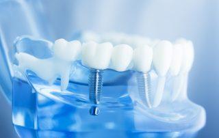 How dental implants work