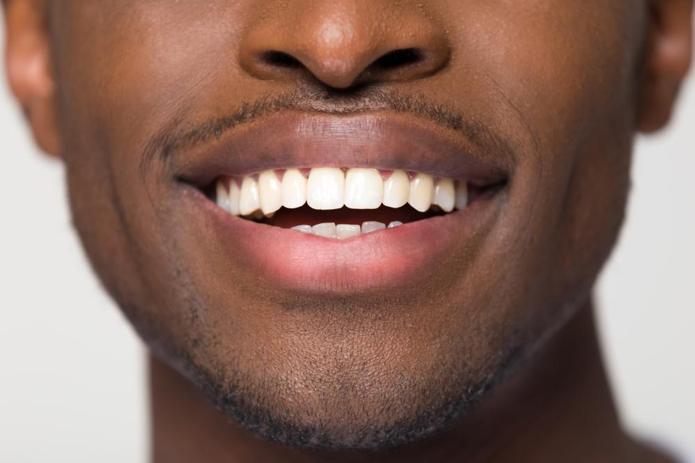 black man with straight teeth